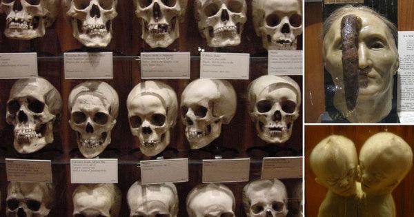 Restos mortais, múmias e esqueletos expostos! Esses museus são ...