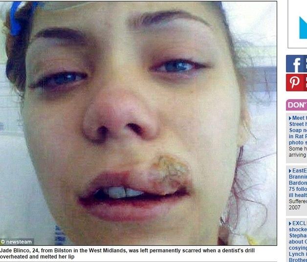 """A aspirante à carreira de modelo, Jade Blinco, de 24 anos, teve parte do lábio """"derretido"""" após uma broca com defeito ter tocado na boca da jovem. De acordo com o Daily Mail desta sexta-feira (12), a menina ficou com uma cicatriz permanente"""