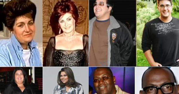 Veja o antes e depois dos famosos que apostaram na cirurgia ...