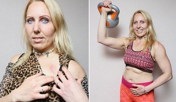 Mulher sobrevive e exibe corpão após sofrer 29 ataques cardíacos em 24 horas