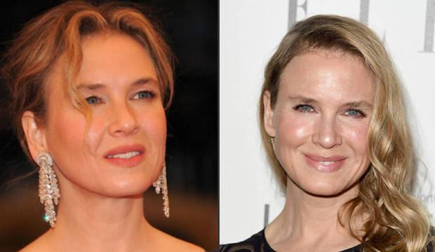 Renée Zellweger exagera no botox e fica irreconhecível. Veja as fãs da substância