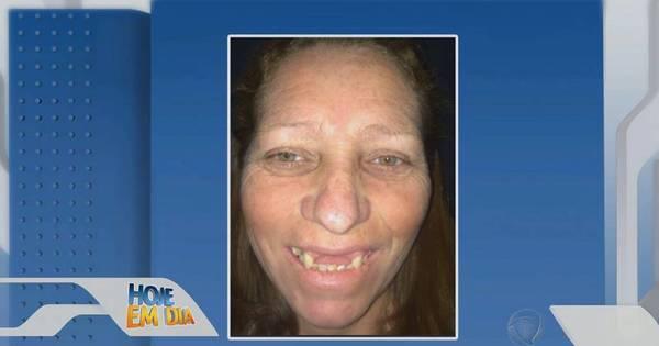 Transformação da Face: veja o antes e depois da mudança mais ...