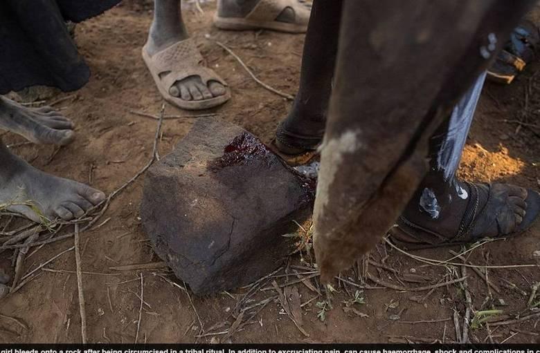 A mutilação genital é sofrida por 140 milhões de mulheres em 29 países do mundo