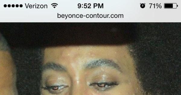 Solange, irmã de Beyoncé, tem reação alérgica no próprio casamento