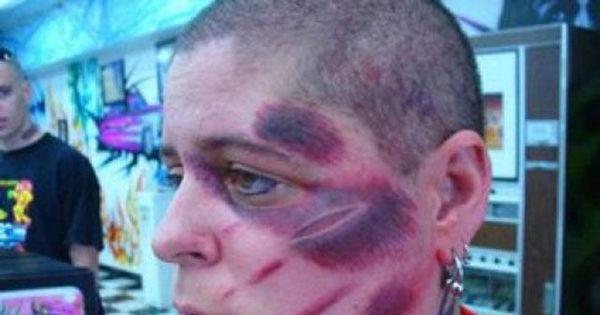 Só tosqueira! Turma dos tatuados arrependidos ganha membros ...