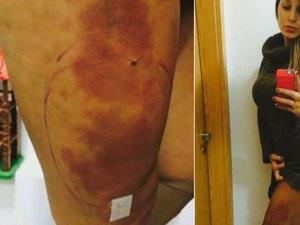 Fotos de erros da cirurgia plastica 17