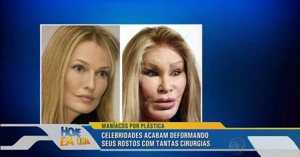 Vaidade extrema! Veja as celebridades que abusaram das plásticas ...
