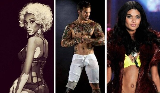 Perna amputada, vitiligo e transexual: relembre quem foram os destaques da moda em 2014
