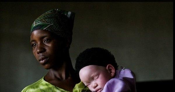 Comércio macabro: corpos de albinos são vendidos por R$ 200 mil ...