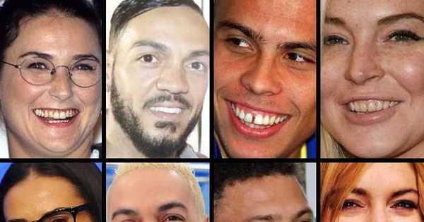 Compare os dentes dos famosos antes e depois da fama - Fotos ...