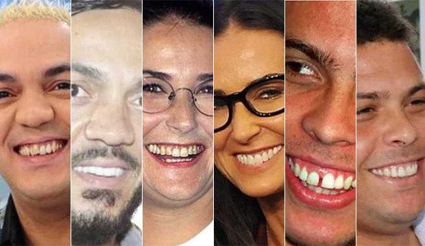 Transformação no sorriso! Compare os dentes das celebridades antes e depois da fama