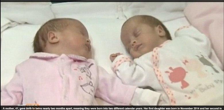 Uma mulher da Romênia de 41 anos deu à luz gêmeos com praticamente&lt;br /&gt;&lt;br /&gt;<br /> dois meses de diferença. A primeira filha nasceu de forma prematura aos sete meses, em novembro de 2014, e a&lt;br /&gt;&lt;br /&gt;<br /> outra nasceu no final de janeiro, sete semanas depois. As informações são do&lt;br /&gt;&lt;br /&gt;<br /> jornal Daily Mail