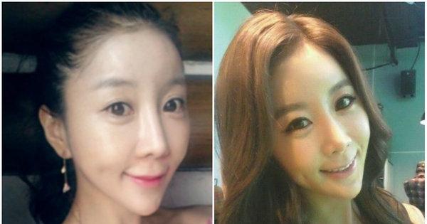 Mulherada na Coreia entra na faca pra ter rosto em formato de ...