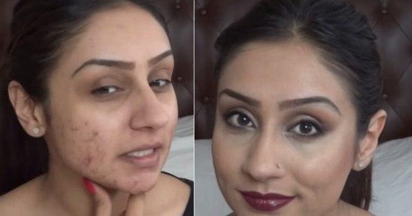 Tutoriais de maquiagem ensinam a disfarçar manchas de acne e ...
