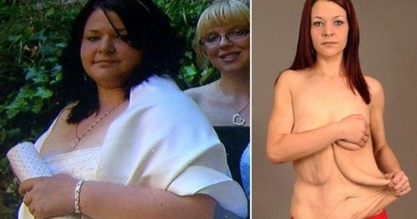"""Após emagrecer 57 kg, jovem desabafa: """"perder peso destruiu ..."""