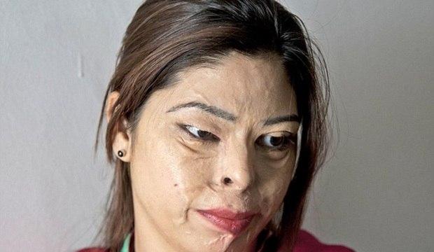 Médico gasta fortuna para ajudar a reconstruir rostos de vítimas de ataque com ácido