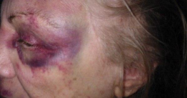 Imagens: idosa agredida por travesti teve traumatismo craniano e ...
