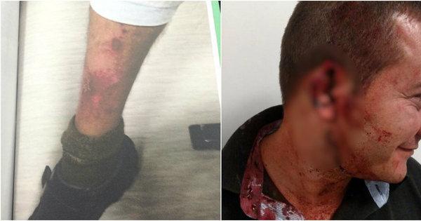 Exclusivo: travesti Verônica entrou em confronto com policiais em ...