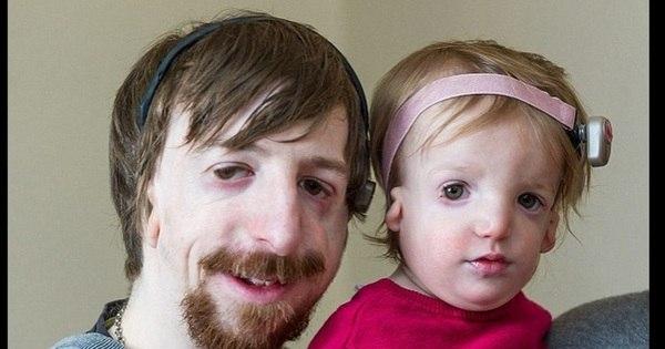 Menina nasce sem ossos na bochecha e com rosto desfigurado por ...