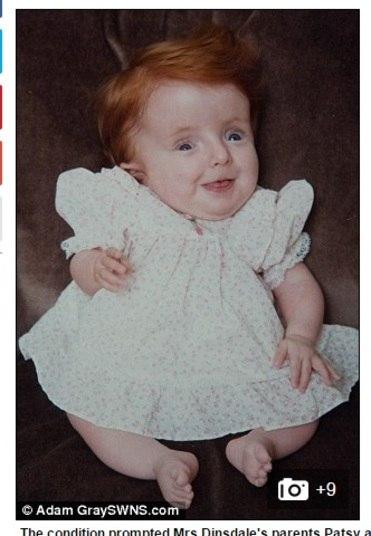 Aos 31 anos, Rebecca estava decidida a desafiar mais uma vez as ordens médicas. Desde a época do seu nascimento, ela foi desacreditada pelos especialistas, que diziam que ela não seria capaz de sentar-se nem de caminhar sem precisar de ajuda. E que, caso sobrevivesse, não passaria dos dois anos de idade