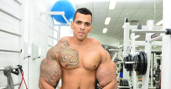 Após injetar mistura perigosa no corpo, 'Incrível Hulk' faz apelo no ...