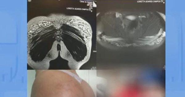 Bumbuns de mulheres infeccionam e ficam deformados - Fotos - R7 ...