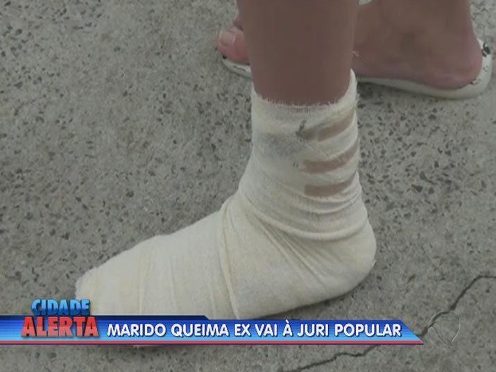 Ela teve 40% do corpo queimado e continua internada desde janeiro. Já a filha sofreu ferimento no pé, depois de pisar na mistura que havia caído no chão.Veja na reportagem