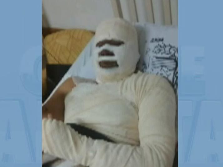 O Cidade Alerta desta sexta-feira (22) exibiu uma reportagem de um crime assustador. Após uma discussão, uma mulher esperou o marido dormir e jogou óleo quente no rapaz de forma cruel. O caso aconteceu na Praia Grande, litoral sul de São Paulo (SP).