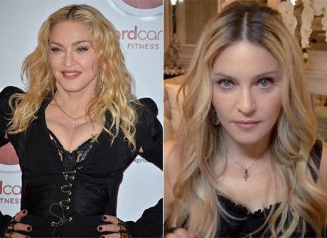 Qual é o segredo do rejuvenescimento da Madonna?
