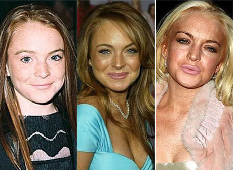Compare as mudanças dos famosos ao longo dos anos