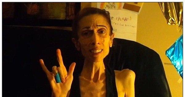 Com apenas 18 kg e à beira da morte, atriz anoréxica recebe ajuda ...