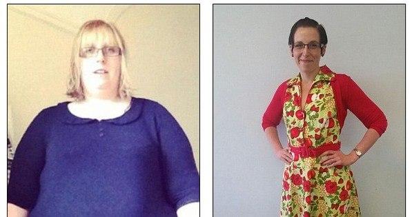 Sem cirurgias, ex- obesa de 150 kg perde metade de seu peso após ...