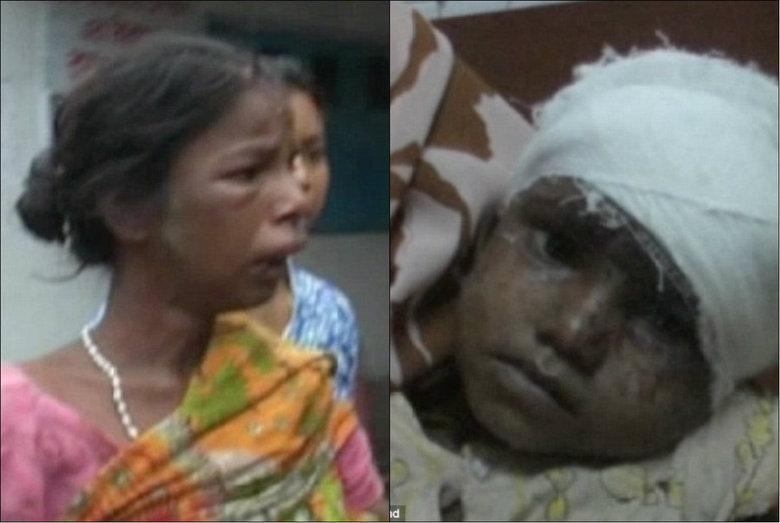Uma mãe alcoólatra chamada Pramila Mondal (à esquerda na foto) foi espancada e linchada por uma multidão na Índia ao ser pega cortando fora e comendo parte do couro cabeludo de sua filha Bharati (à direita na foto), de dois anos de idade