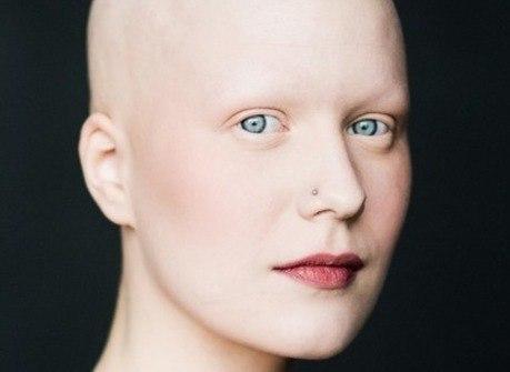 Mulheres com doença que provoca queda de cabelo posam em ensaio