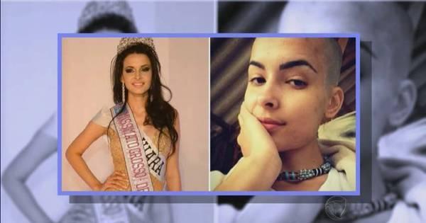 Lindas e carecas: a beleza das mulheres que raspam a cabeça ...