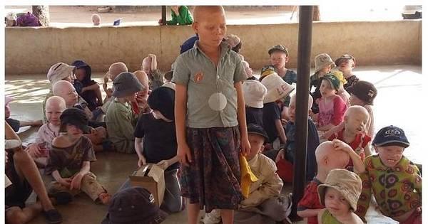 Ataques contra albinos aumentam com proximidade de eleições na ...