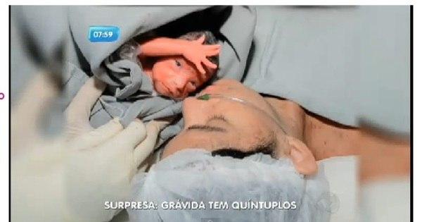 Mulher dá à luz quíntuplos em Recife, e bebês passam bem - Fotos ...