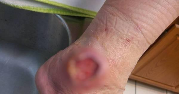 Prepare o estômago! Picada de aranha-marrom deixa ferimento ...