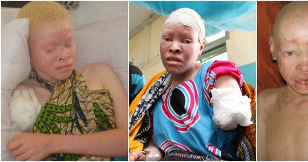Albinos são cruelmente mutilados e partes do corpo são usadas em ...