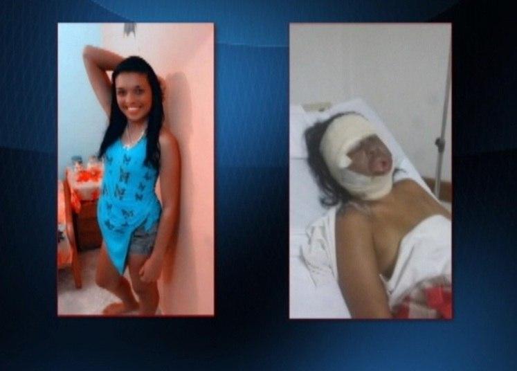 Aline Cristiane dos Reis, de 24 anos,teve queimaduras de 2º grau pelo corpo e ficou internada em estado grave