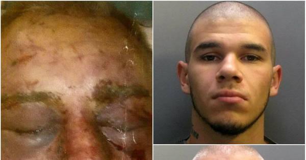 Ficou desfigurado! Homem é brutalmente atacado durante assalto e ...