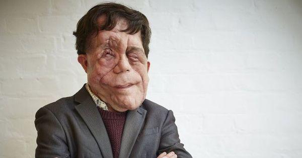 Britânico desfigurado por tumor relata cotidiano de olhares e ...
