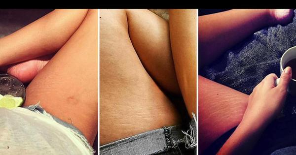 Campanha online celebra celulites e estrias para promover corpos ...