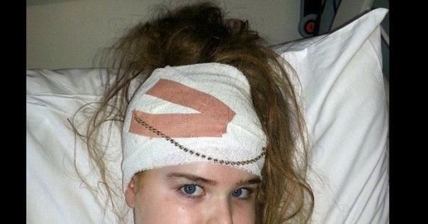 Menina descobre derrame por causa de dores de cabeça muito fortes