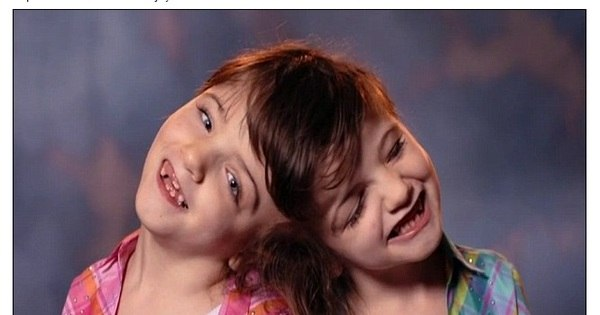 Ligadas pelo cérebro, gêmeas siamesas sentem as mesmas ...