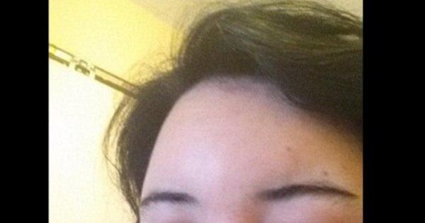 """Mulher quase fica cega após tingir o cabelo: """"Fiquei tão inchada ..."""