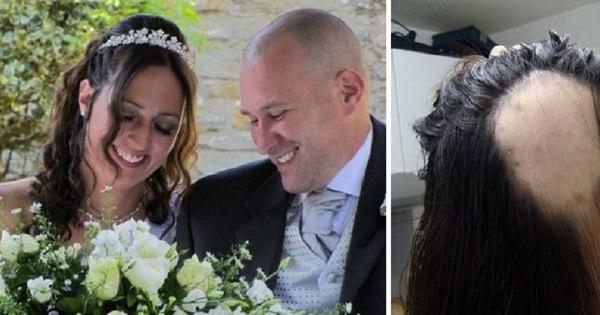 Noiva fica careca na véspera do casamento devido ao estresse da ...