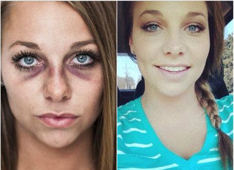 Após apanhar do namorado, garota mostra ferimentos