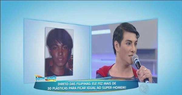 Filipino faz 30 plásticas para se transformar em Super-Homem ...