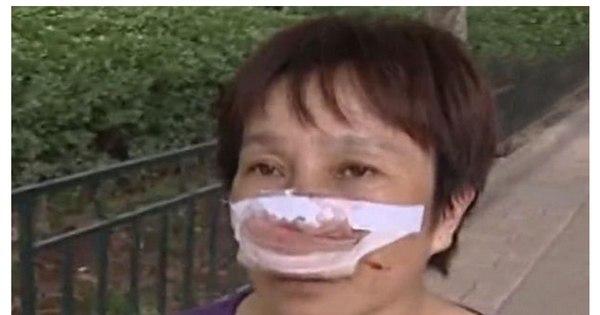 Violência: marido arranca nariz de mulher com os dentes - Fotos ...
